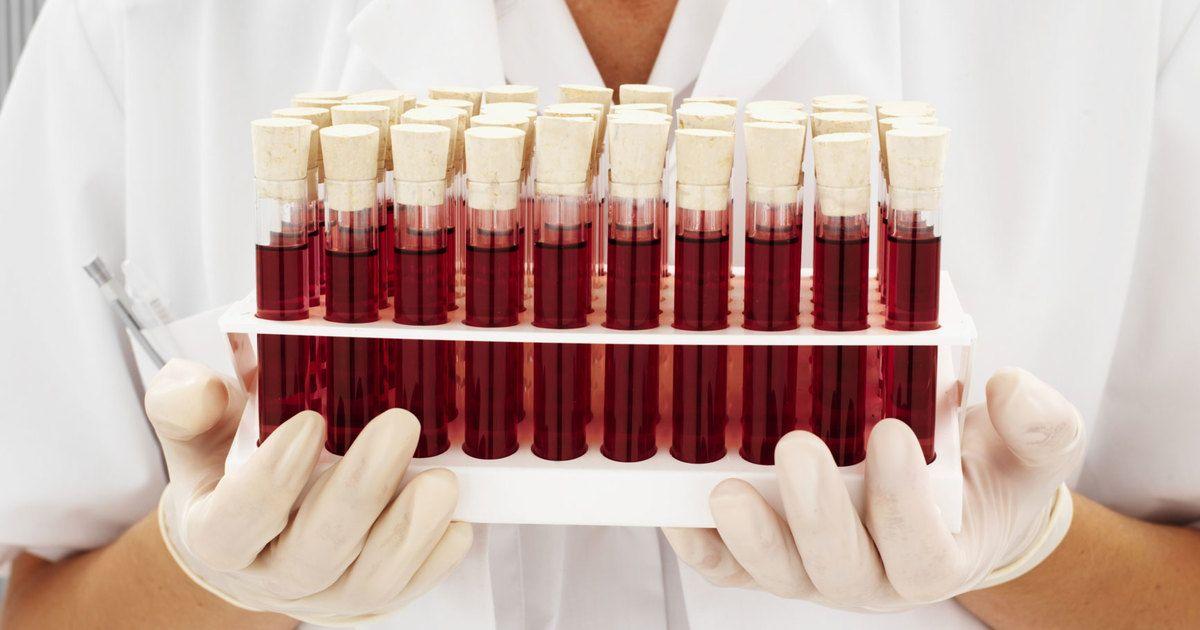 Учёные определили самую опасную группу крови человека