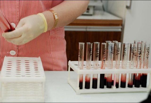 21 мая жители Ставрополя смогут пройти экспресс-тест на ВИЧ