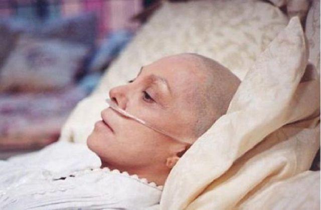 Самый распространенный вид рака в России — рак кожи