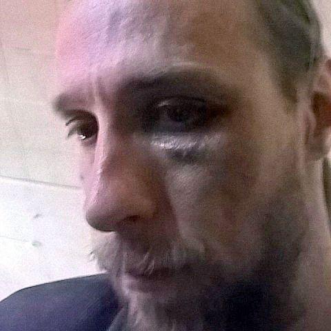 «Будешь знать, как язык распускать!» — неизвестные избили журналиста в центре Ставрополя