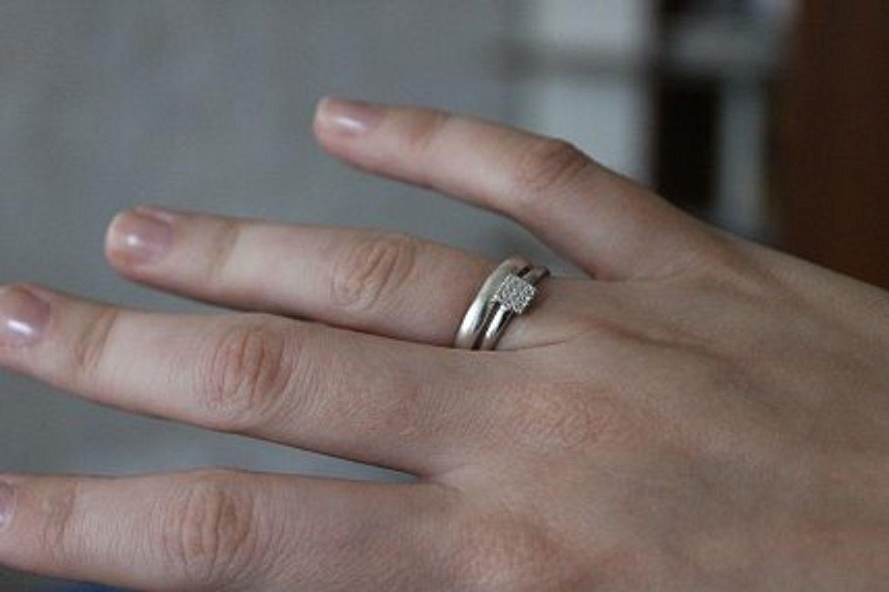 В Ставрополе спасатели сняли кольцо с отёкшего пальца 84-летней женщины