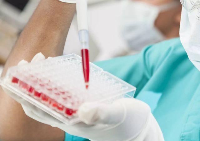 На Ставрополье за 2018 год врачи обследовали на ВИЧ более 2000 человек